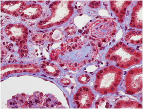 Trichome stain shows arteriolar occlusion, consistent with a thrombotic microangiopathy
