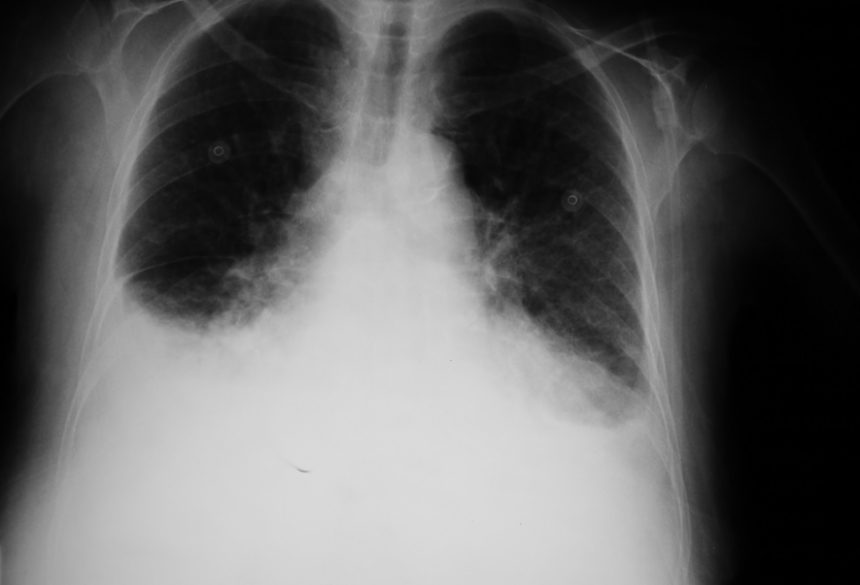 x-ray of lungs with edema