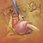 Nerve-Sparing Prostate Surgery illustration