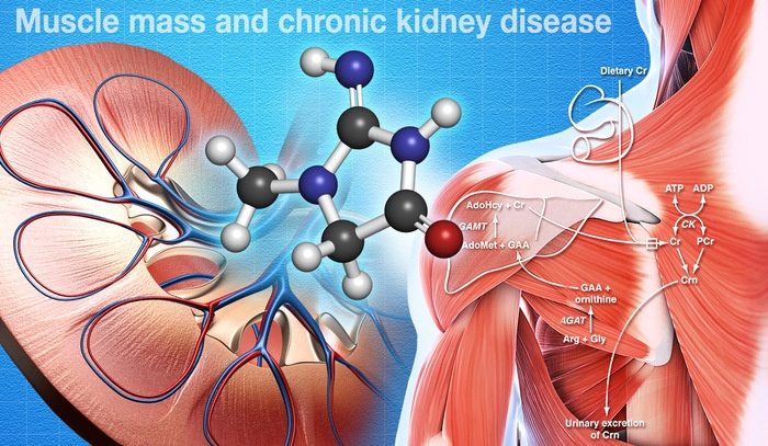 Muscle Mass Not Accurate in Predicting Chronic Kidney Disease (CKD)