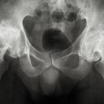 Despite smaller, prior studies suggesting that pioglitazone might raise users' risk of bladder cance