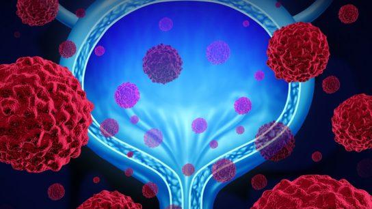 ASS1 loss in bladder cancer
