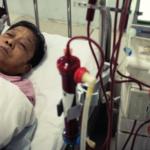 dialysis in icu