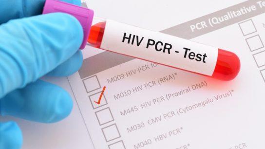 HIV PCR test