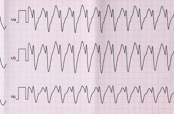 Examining Other Arrhythmias