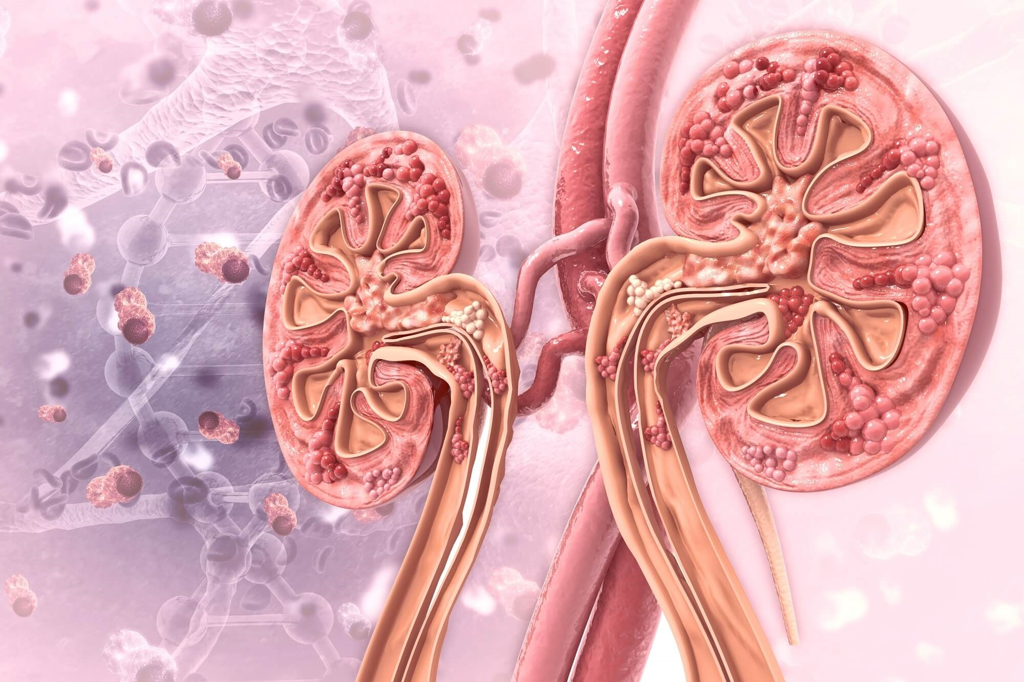 Gout Linked to Increased Risk for Chronic Kidney Disease - Renal and Urology News