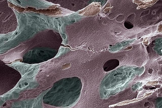 Scanning electron micrograph of human bone, osteoporosis