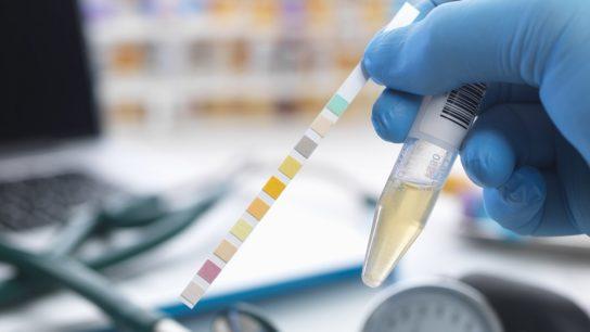 urinary test, UTI