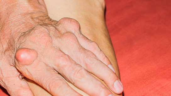 Gout flare in the hand of an elderly person