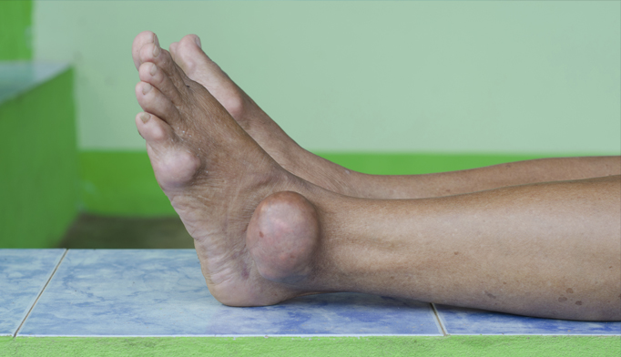 gout-hyperuricemia-0516