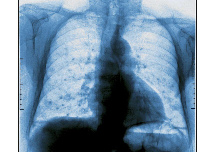 Lung Metastasis, X-Ray