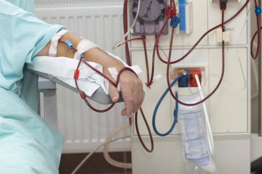 Peritoneal Dialysis News, Research Studies | Clincal News on PD