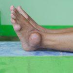 foot gout