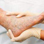 varicose veins in the foot