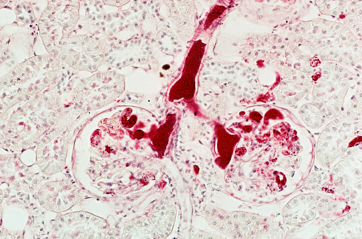 There are estimated to be 13 distinct hereditary renal cell carcinoma (RCC) syndromes, each of which