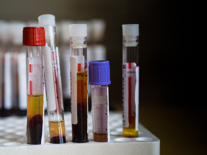 blood and serum in test tubes